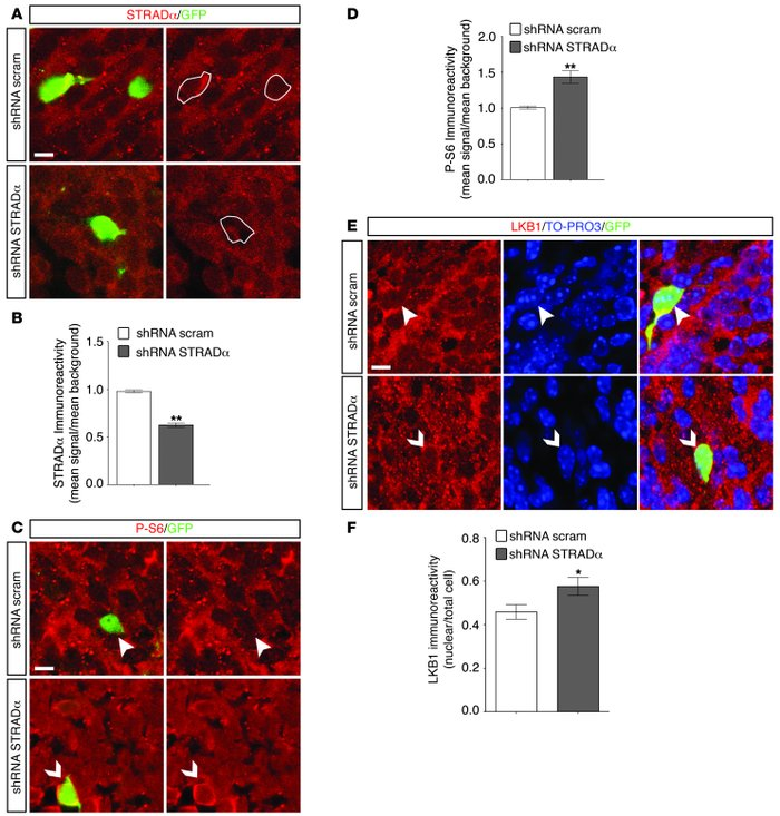 STRADα-deficient cells exhibit enhanced phosphorylation of S6 and nuclea...
