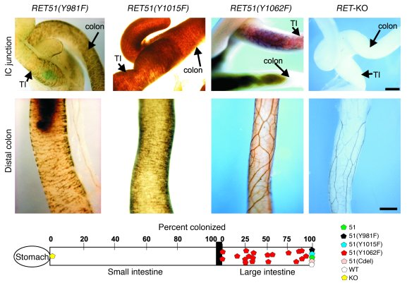 Essential role of the RET-Shc multidocking site in distal colon innervat...