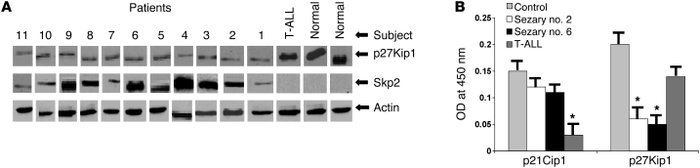 Detection of Skp2, p27Kip1, and p21Cip1 in primary CD4+ T cells from ind...