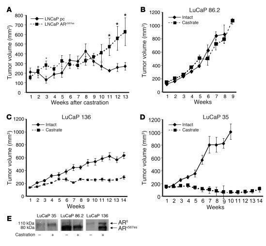 JCI - Castration resistance in human prostate cancer is conferred by