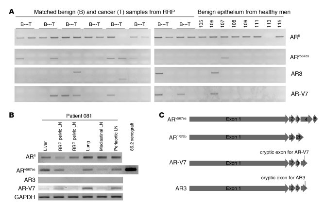 Expression of the splice variant ARv567es in human prostates.     (A) AR...