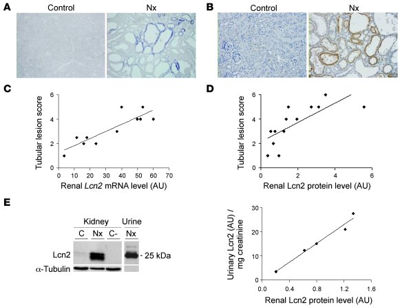 Lcn2 is overexpressed after nephron reduction in mice and correlates wit...