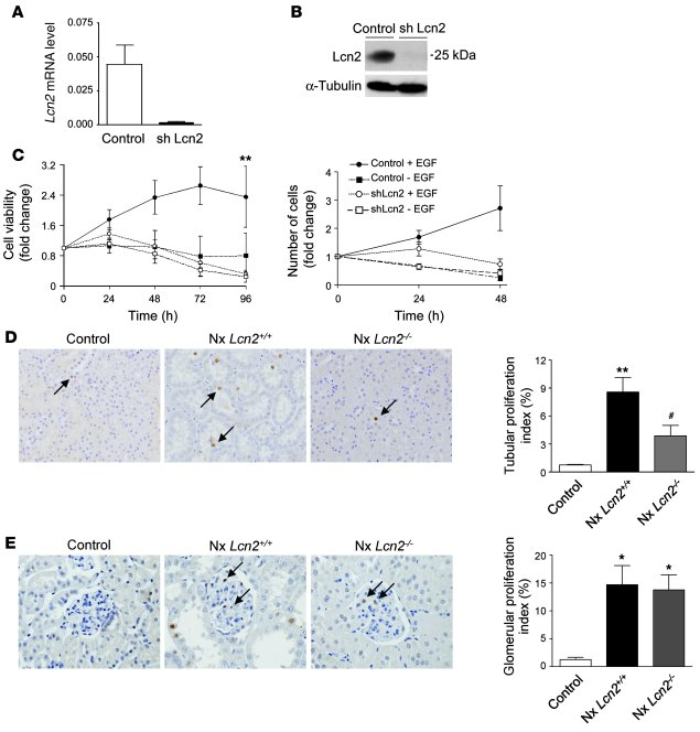 Lcn2 mediates the proliferative effect of EGFR. (A and B) Stable Lcn2 sh...