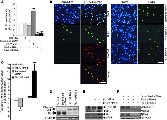 Pit-1 regulates proliferation and cell death in the MCF-7 human breast a...