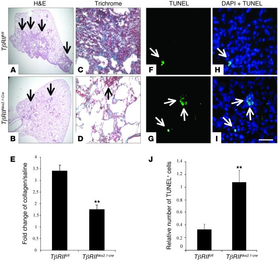 Relative resistance to bleomycin-induced fibrosis in TβRIINkx2.1-cre mic...