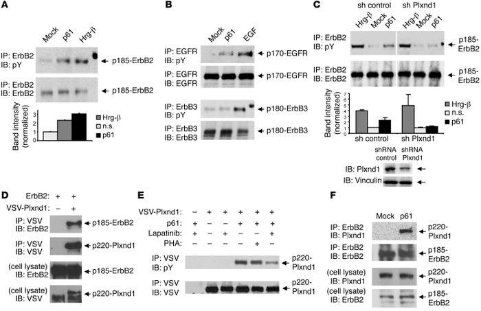 p61-Sema3E elicits the activation of Plexin D1–associated tyrosine kinas...