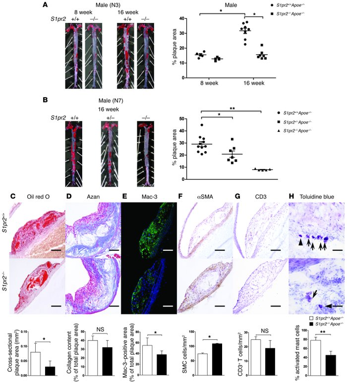 Decreased atherogenesis in mice lacking S1PR2. (A and B) Representative ...