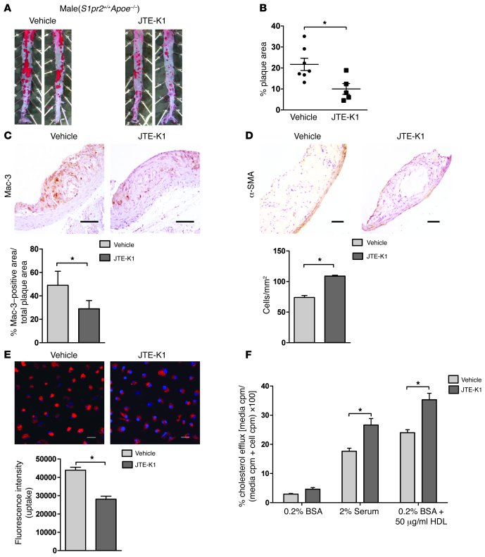 Pharmacological blockade of S1PR2 inhibits atherosclerosis. (A) S1PR2 an...