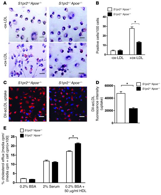 S1PR2 deficiency inhibits uptake of modified LDL and stimulates choleste...