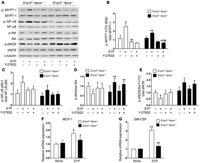 S1PR2 deficiency inhibits the activity of the Rho/ROCK/NF-κB pathway but...