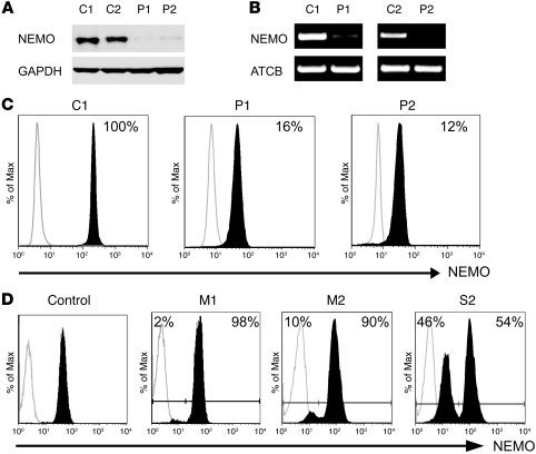 EDI patients P1 and P2 exhibit reduced NEMO expression. (A) NEMO protein...