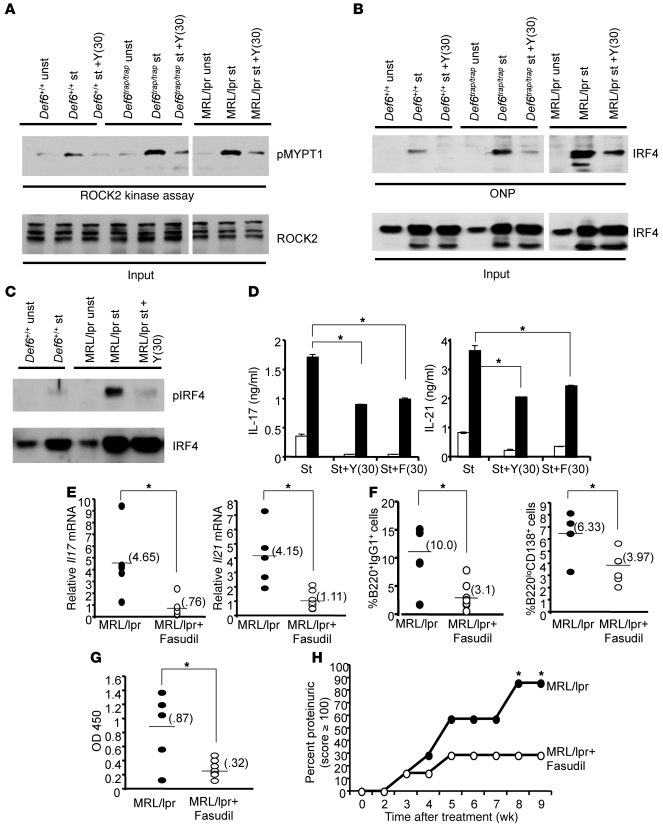 Enhanced ROCK2 activation and aberrant IRF4 function in MRL/lpr CD4+ T c...