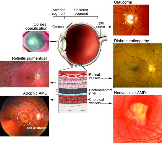 Schematic representation of the eye with images of diseases associated w...