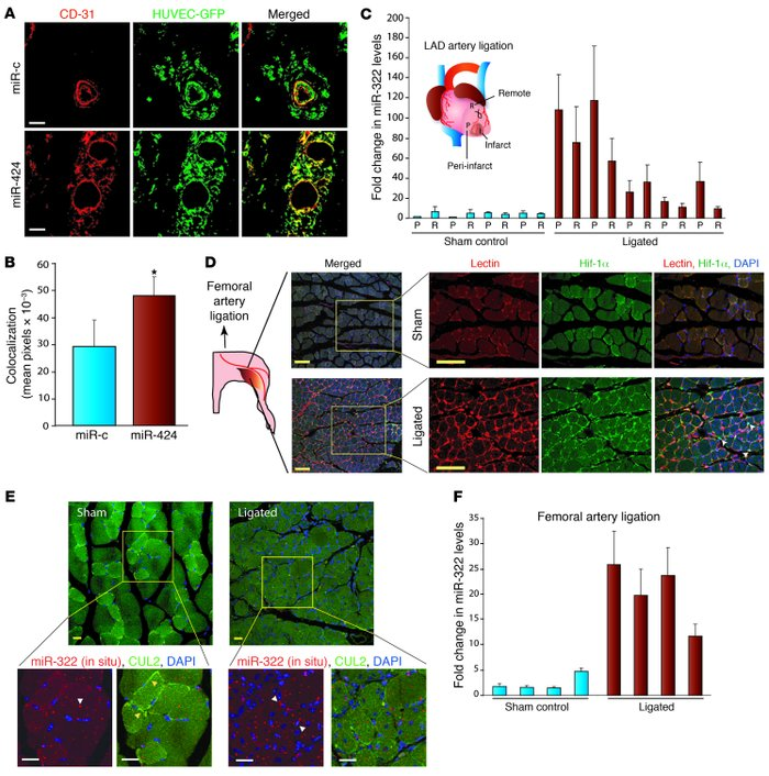Effect of miR-424 on in vivo angiogenesis. (A) HUVECs were transduced wi...