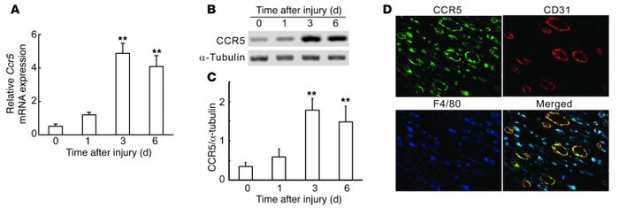 CCR5 expression at wound sites in WT mice. (A) Quantitative RT-PCR analy...