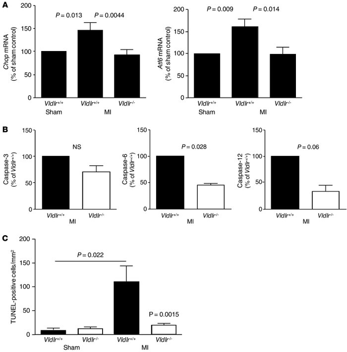 Ischemia-induced ER stress and apoptosis are reduced in hearts from Vldl...