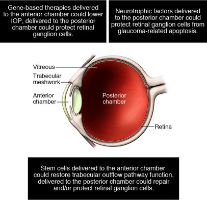 Schematic overview of experimental therapeutic approaches to glaucoma, i...
