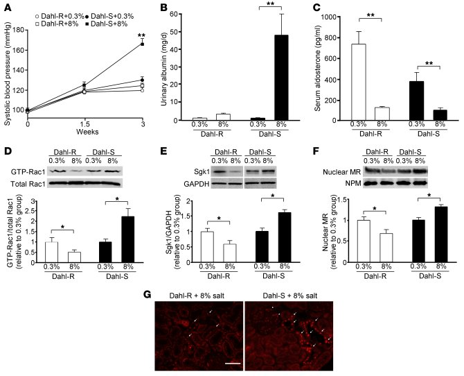 Effects of high-salt loading on Rac1 activity and MR signaling activity ...
