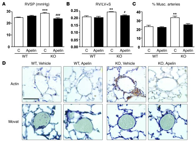 Apelin replacement reverses PAH in TIE2CrePPARγfl/fl mice.     (A) RV sy...