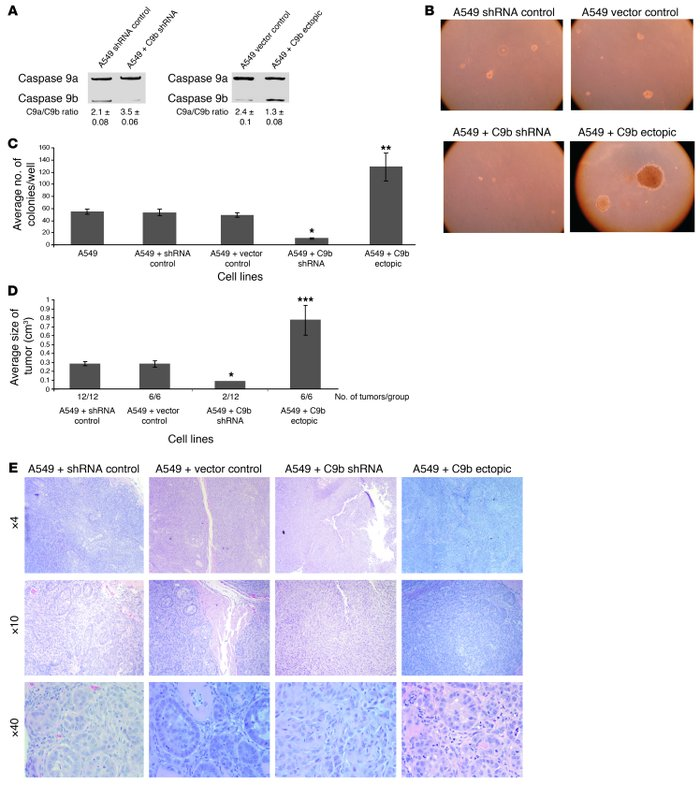Caspase-9 regulates the tumorigenic capacity in A549 cells. (A) Total RN...