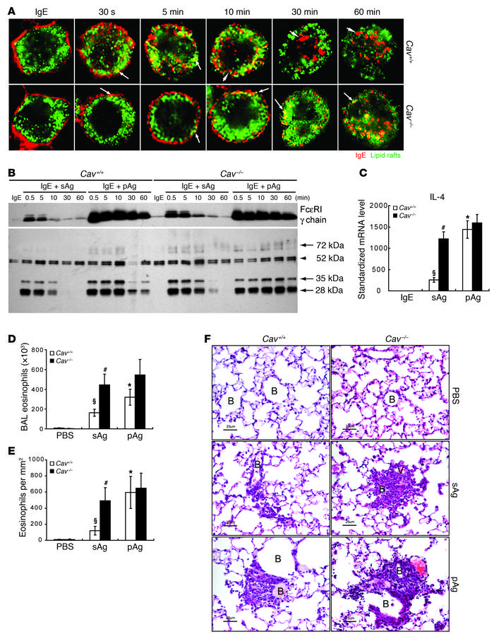 Caveolin 1 deficiency results in enhanced signaling responses of sAgs to...