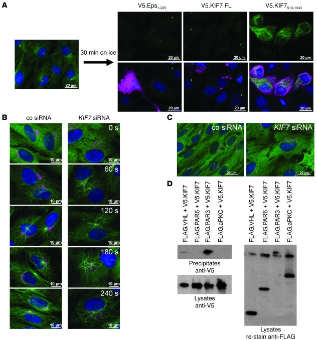 KIF7 dysfunction affects microtubular stability and dynamics. (A) In hTE...