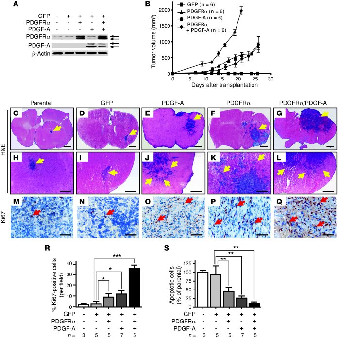 PDGFRα and/or PDGF-A overexpression promotes tumorigenesis of Ink4a/Arf–...