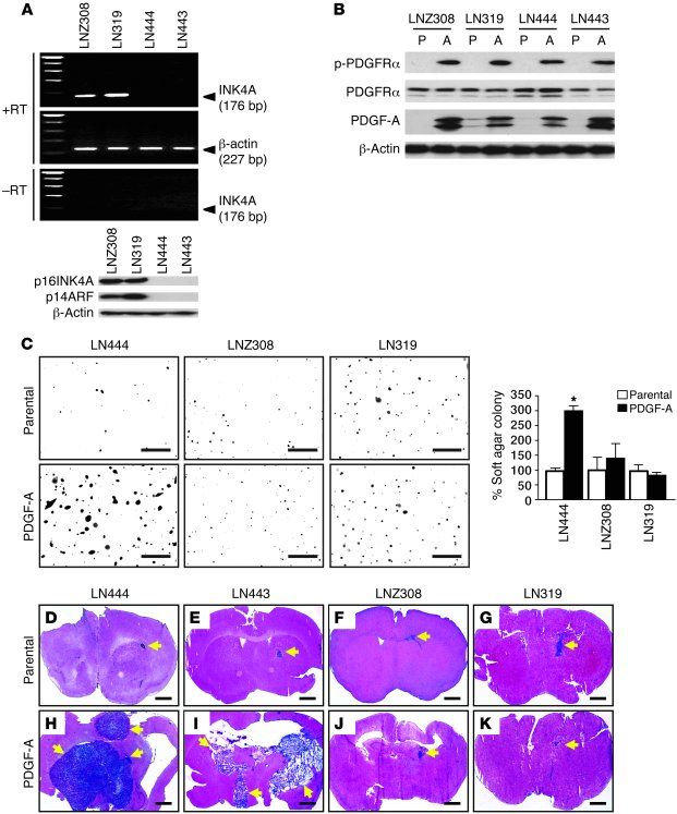PDGF-A overexpression enhances tumorigenesis of INK4A/ARF-deficient but ...