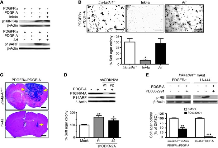 Re-expression of p16INK4a but not p19ARF suppresses the tumorigenesis of...