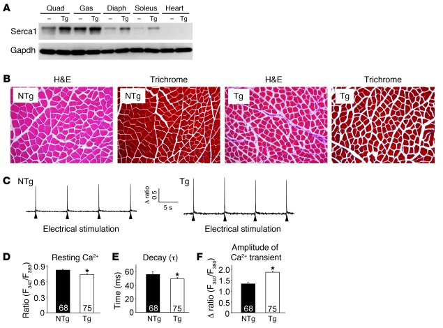 Overexpression of SERCA1 in skeletal muscle enhances Ca2+ cycling during...