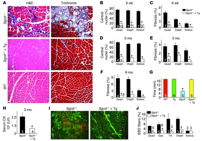 SERCA1 mitigates biochemical and histological features of MD in Sgcd–/– ...