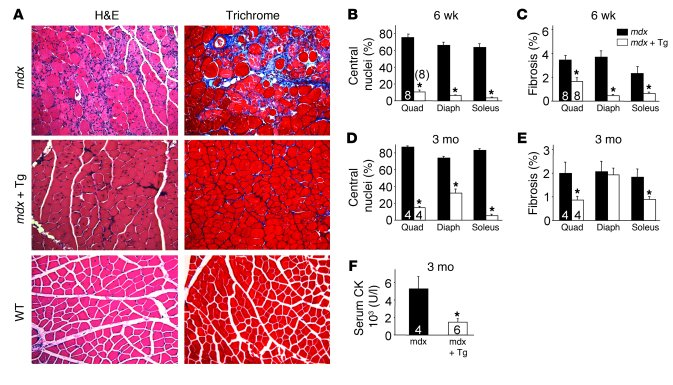 SERCA1 mitigates biochemical and histological features of MD in mdx mice...