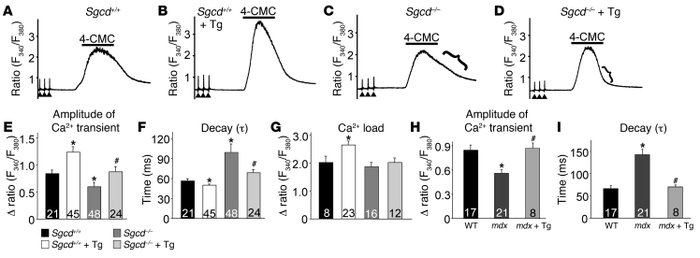SERCA1 overexpression enhances EC coupling and Ca2+ clearance in Sgcd–/–...