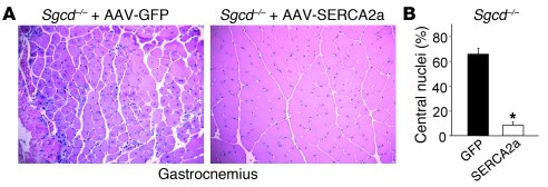 AAV9-SERCA2a gene therapy mitigates disease in Sgcd–/– gastrocnemius.   ...