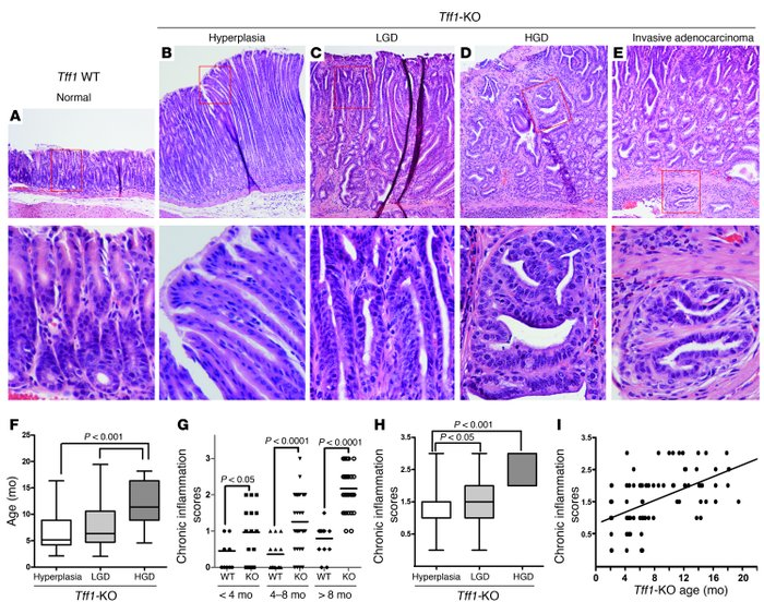 Loss of the Tff1 gene promotes susceptibility to inflammation and gastri...