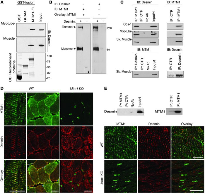 MTM1 interacts with desmin in vitro and in muscle. (A) GST–MTM1–full-len...