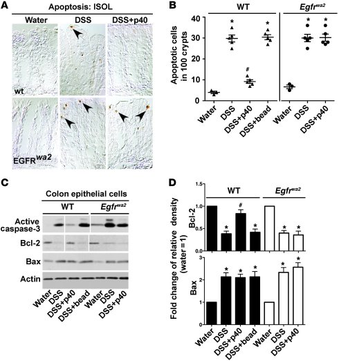 EGFR kinase activity is required for p40-mediated inhibition of DSS-indu...