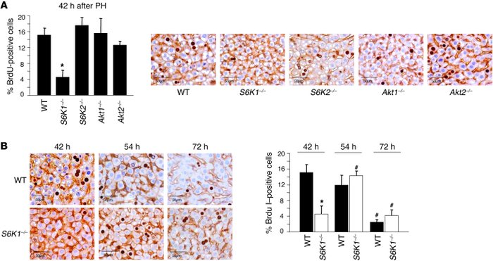 Delay in liver regeneration correlates with the specific deletion of S6K...