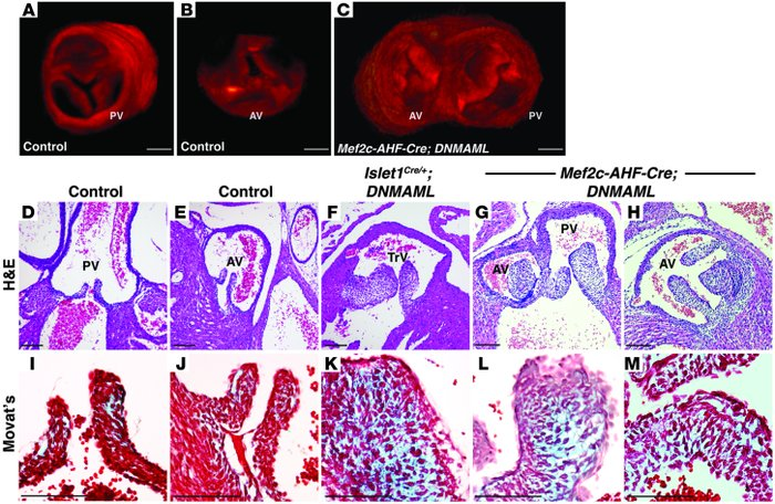Notch inhibition in the second heart field results in dysmorphic semilun...