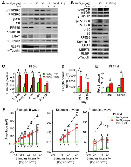 Rapamycin inhibits mTOR/S6K-mediated RPE dedifferentiation and subsequen...