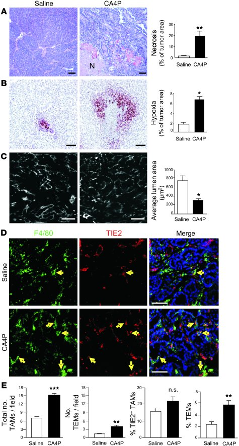 CA4P induced vascular damage, increased tumor hypoxia, and increased TEM...