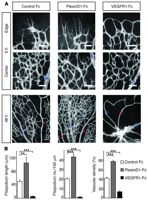 PlexinD1 signaling retracts endothelial filopodia in retinal vascular de...