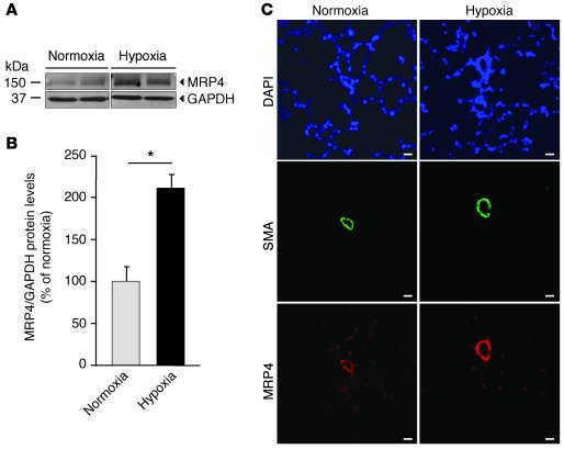 Increased MRP4 expression in hypoxia-induced PH in mice. (A) Western blo...