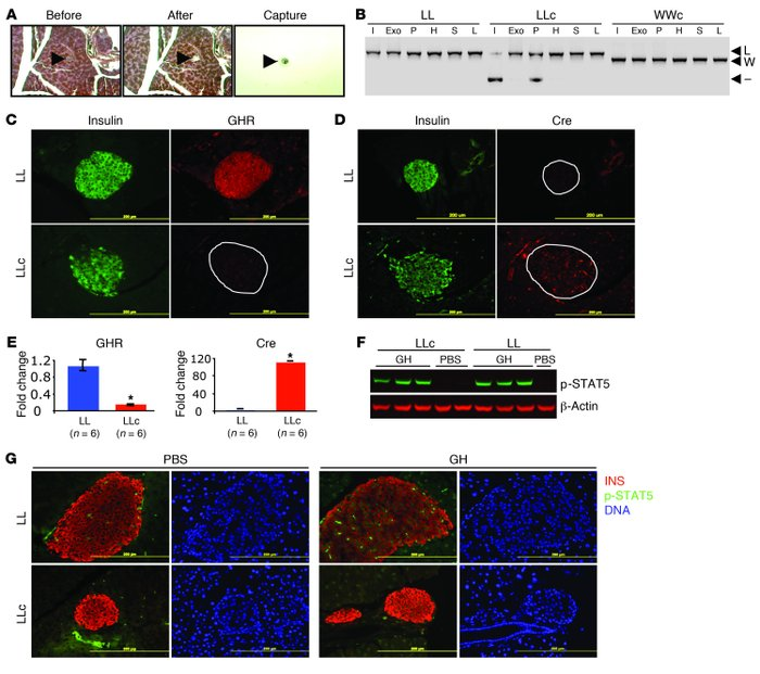 Assessment of Ghr excision and expression in βGHRKO mice.     (A) Isolat...