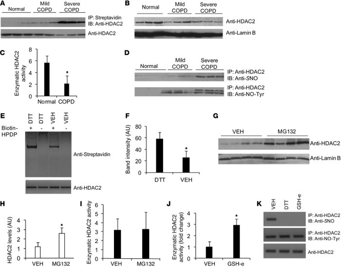 S-nitrosylation of HDAC2 protein and concomitant decline in HDAC2 activ...