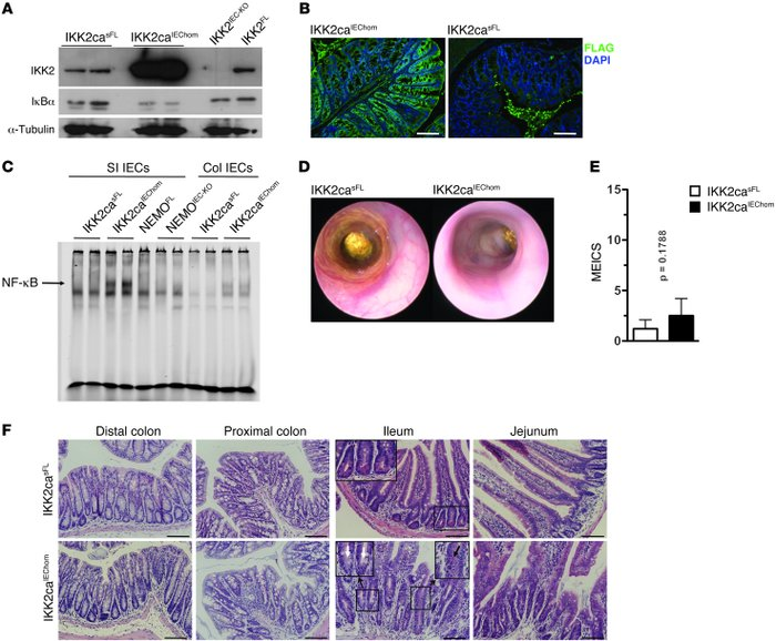 IKK2ca expression in IECs induces NF-κB activation and mild intestinal i...
