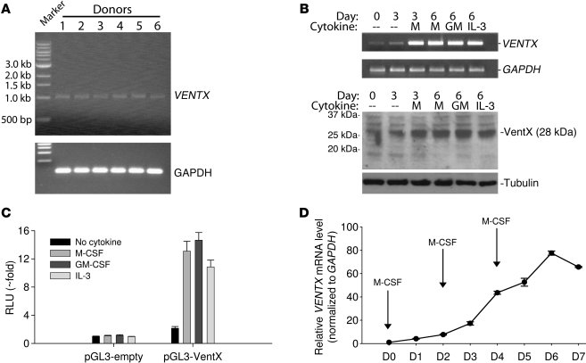 Upregulation of VentX expression during monocyte-to-macrophage different...