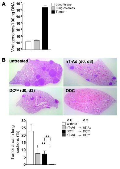 Immune responses induced by DC vaccination during viral tumor inflammati...