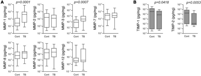 MMP-1 concentrations are increased in the lungs of patients with TB comp...