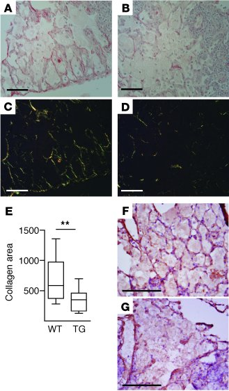 M. tuberculosis–driven MMP-1 expression causes collagen destruction.   ...
